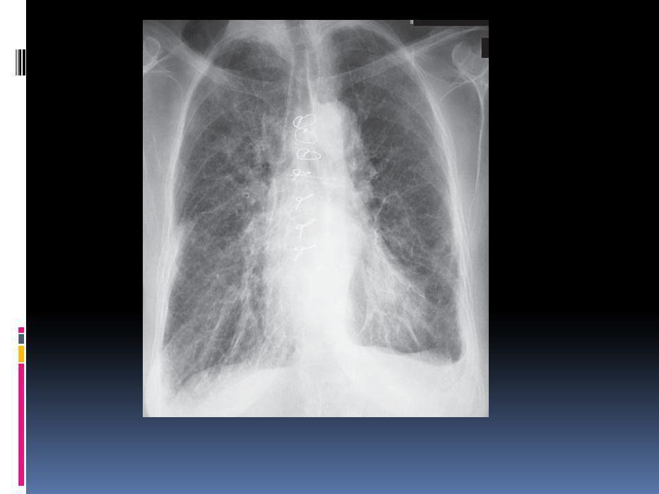  birkaç gün diüretik tedavisi sonrası pulmoner ödem çözülmüş.