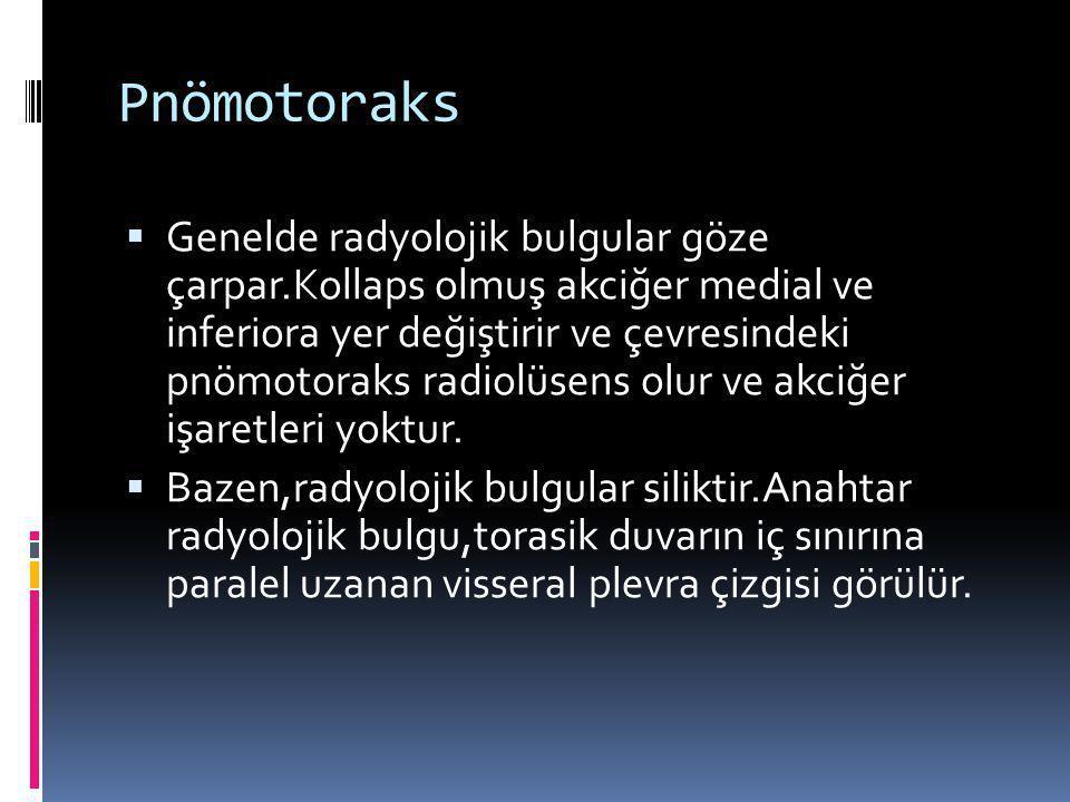 Pnömotoraks  Genelde radyolojik bulgular göze çarpar.Kollaps olmuş akciğer medial ve inferiora yer değiştirir ve çevresindeki pnömotoraks radiolüsens