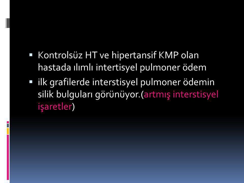  Kontrolsüz HT ve hipertansif KMP olan hastada ılımlı intertisyel pulmoner ödem  ilk grafilerde interstisyel pulmoner ödemin silik bulguları görünüy