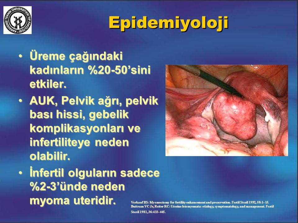 Epidemiyoloji Üreme çağındaki kadınların %20-50'sini etkiler.Üreme çağındaki kadınların %20-50'sini etkiler. AUK, Pelvik ağrı, pelvik bası hissi, gebe