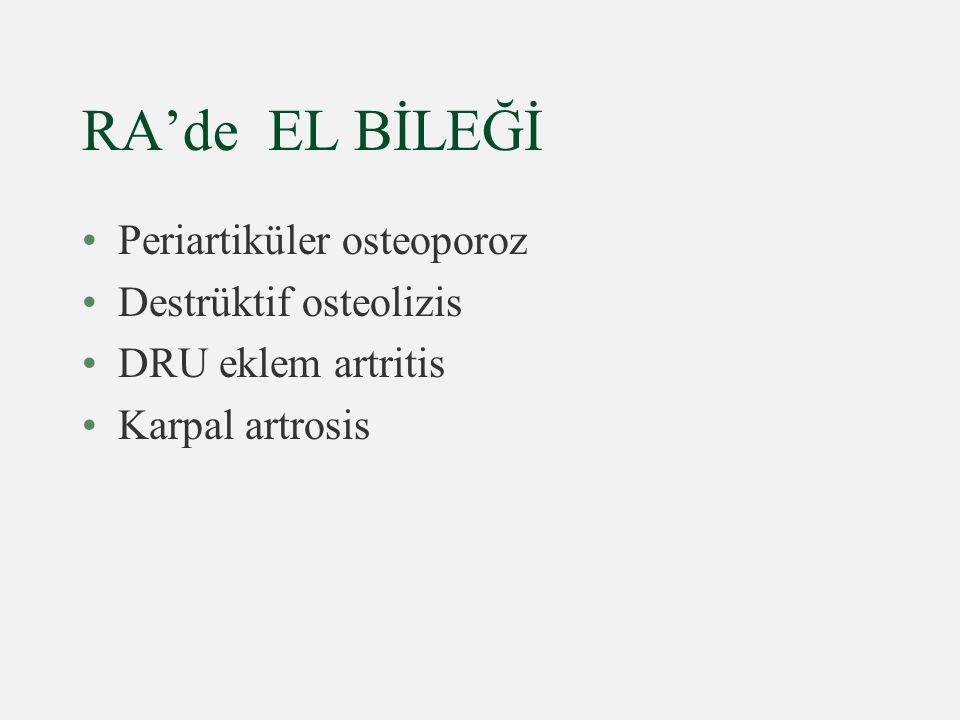 RA'de EL BİLEĞİ Periartiküler osteoporoz Destrüktif osteolizis DRU eklem artritis Karpal artrosis
