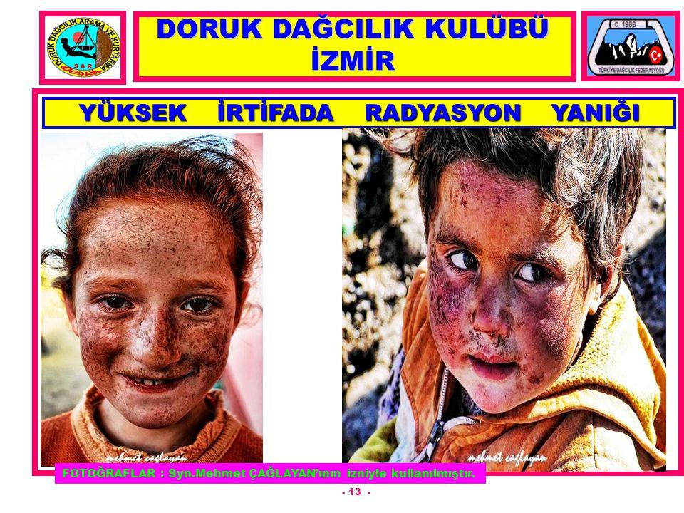 - 13 - YÜKSEK İRTİFADA RADYASYON YANIĞI DORUK DAĞCILIK KULÜBÜ İZMİR FOTOĞRAFLAR : Syn.Mehmet ÇAĞLAYAN'ının izniyle kullanılmıştır.
