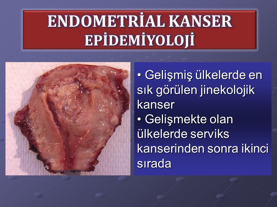 Uterin kanserler arasında en sık görülen 'Endometrial Adenokarsinom'dur.