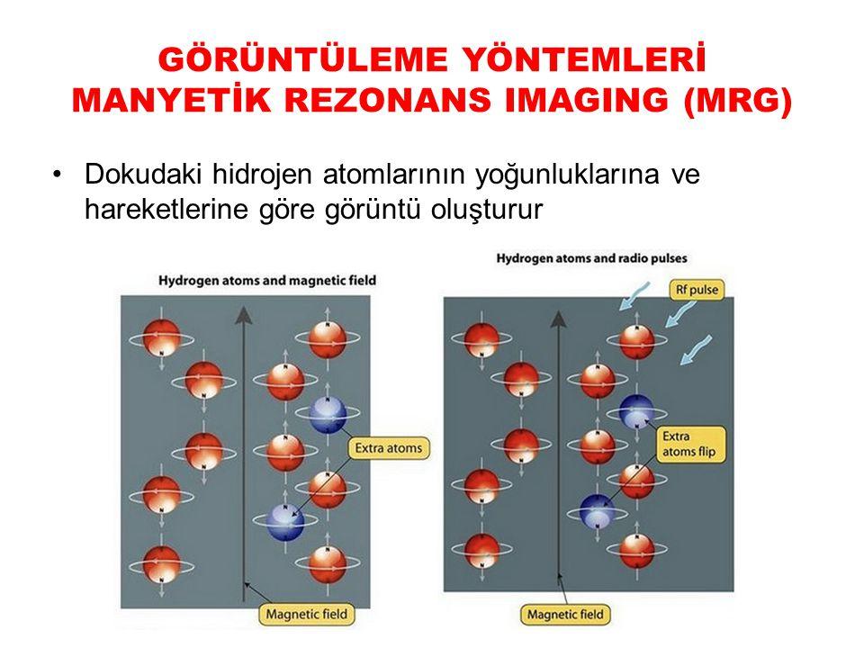 GÖRÜNTÜLEME YÖNTEMLERİ MANYETİK REZONANS IMAGING (MRG) Dokudaki hidrojen atomlarının yoğunluklarına ve hareketlerine göre görüntü oluşturur
