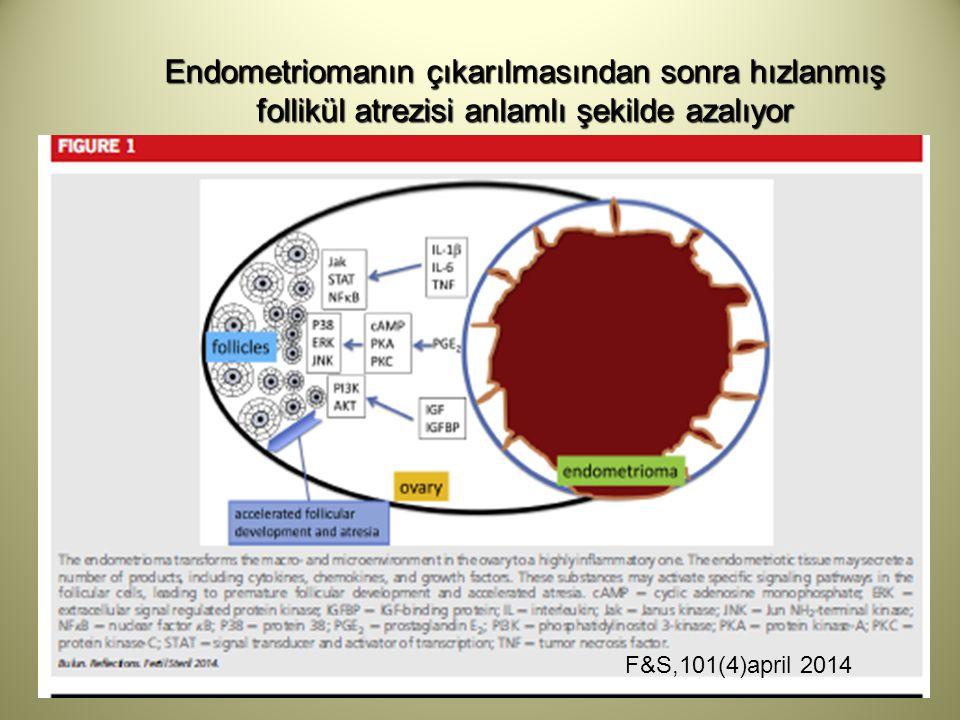 Endometriomanın çıkarılmasından sonra hızlanmış follikül atrezisi anlamlı şekilde azalıyor F&S,101(4)april 2014