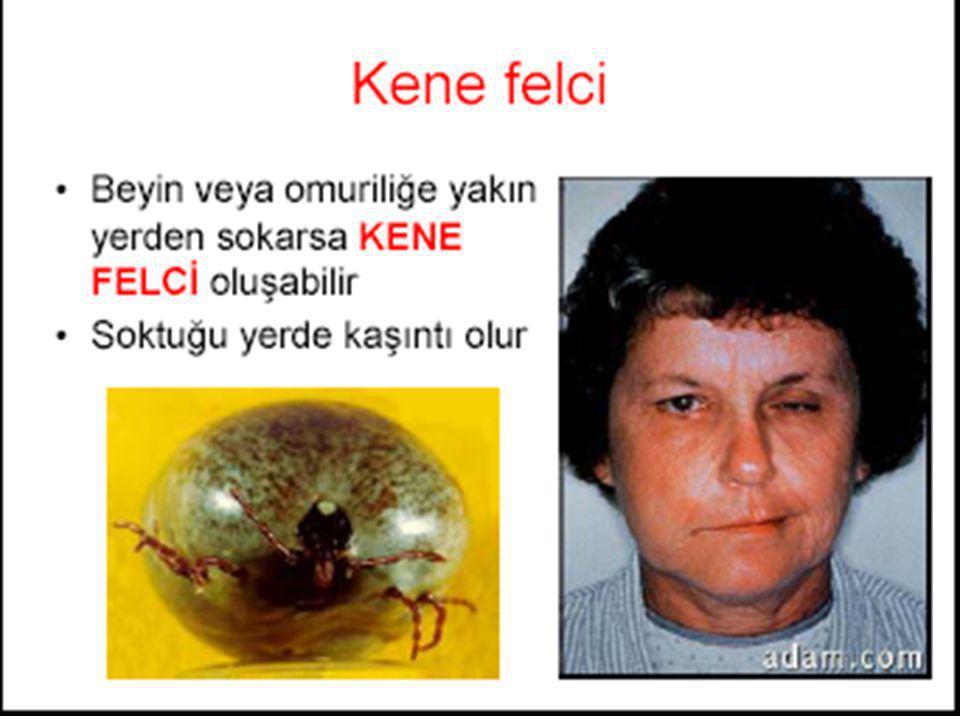 OLGU Osmangazi Üniv Tıp Fak.KBB AD.