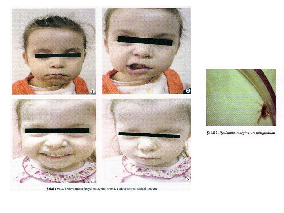 Tıbbi Önemleri-2 Kene vektörlüğü Vücudlarına giren hastalık etkenlerini nesilden nesile aktarabilirler.
