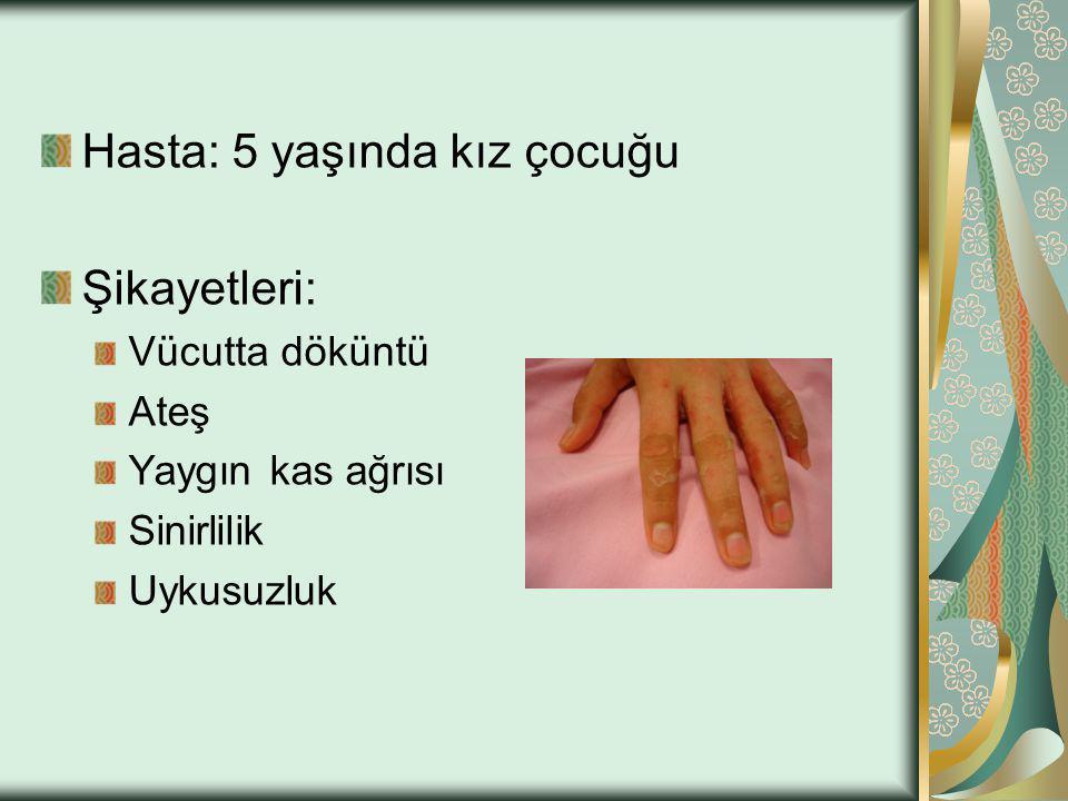 Hasta: 5 yaşında kız çocuğu Şikayetleri: Vücutta döküntü Ateş Yaygın kas ağrısı Sinirlilik Uykusuzluk