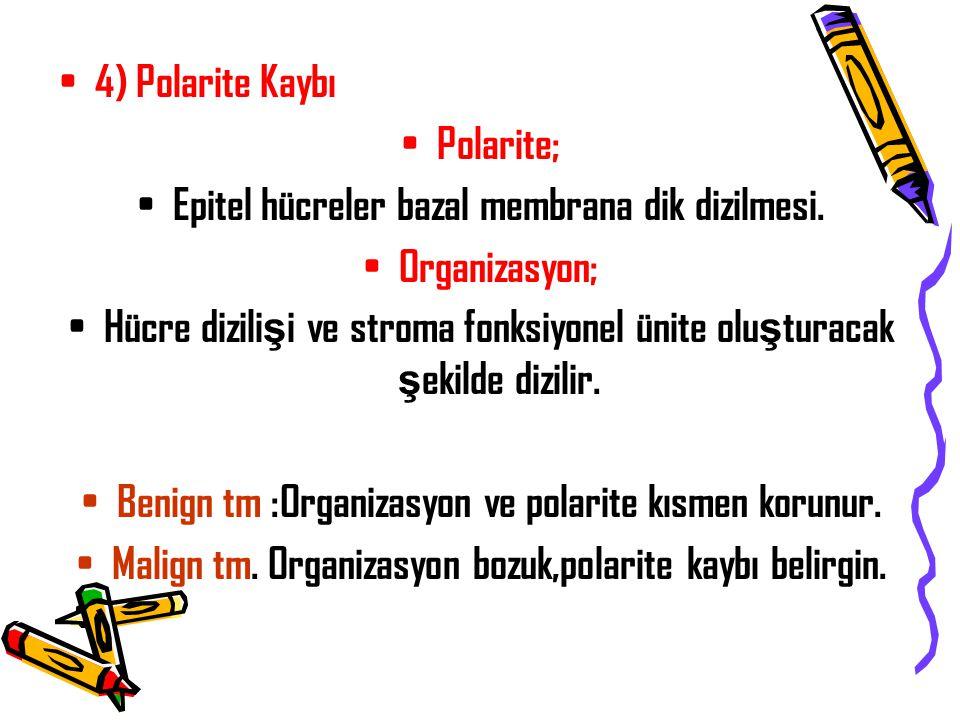 4) Polarite Kaybı Polarite; Epitel hücreler bazal membrana dik dizilmesi. Organizasyon; Hücre dizili ş i ve stroma fonksiyonel ünite olu ş turacak ş e