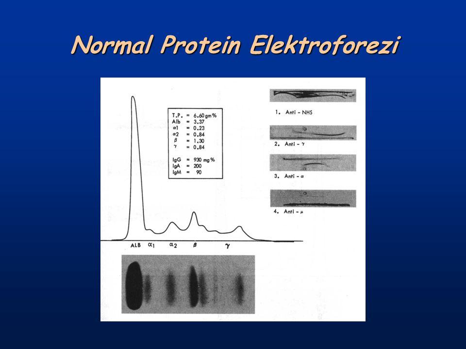 Normal Protein Elektroforezi