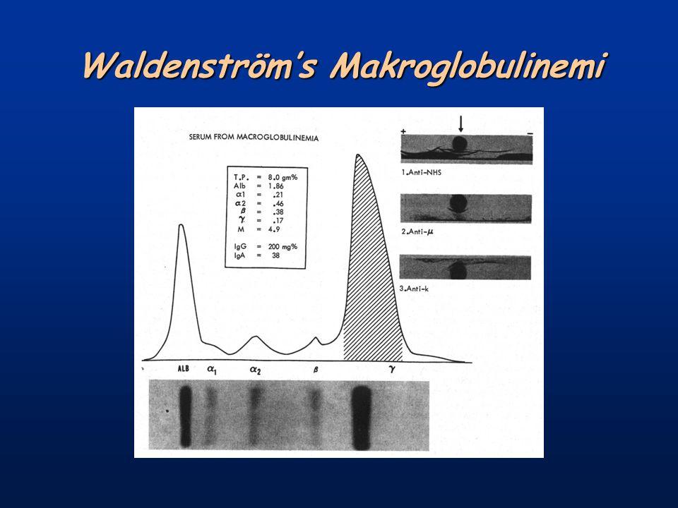 Waldenström's Makroglobulinemi