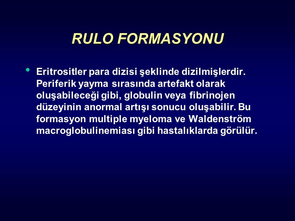 RULO FORMASYONU Eritrositler para dizisi şeklinde dizilmişlerdir. Periferik yayma sırasında artefakt olarak oluşabileceği gibi, globulin veya fibrinoj