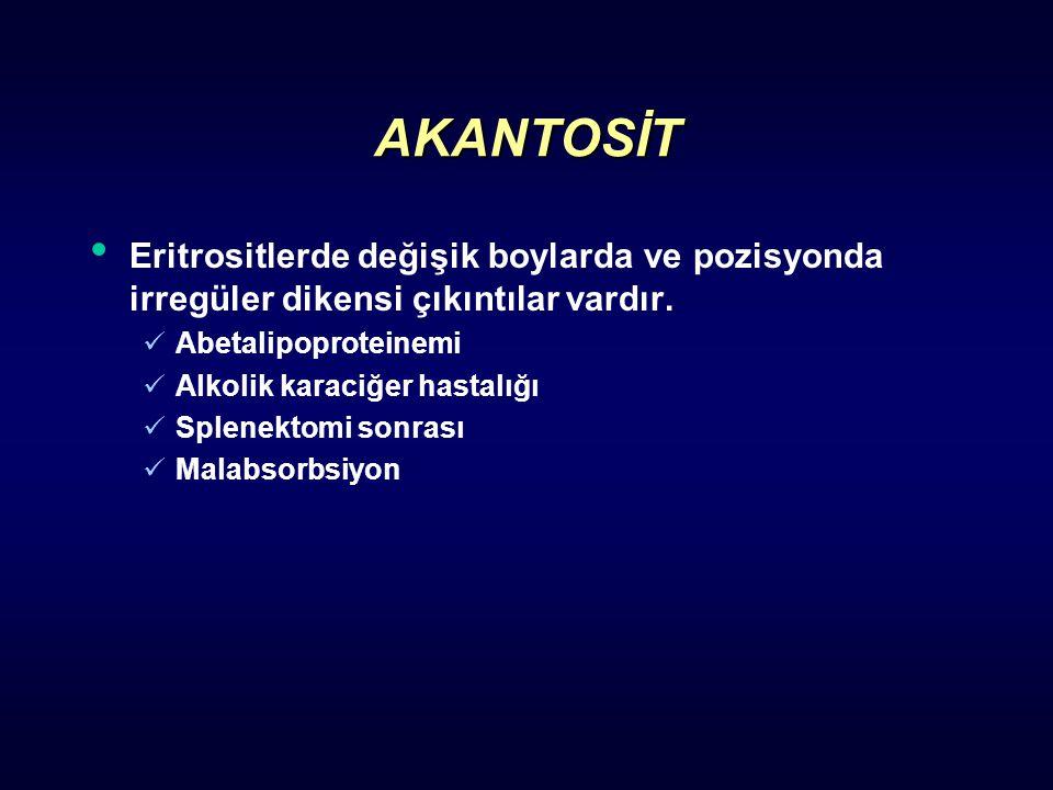 AKANTOSİT Eritrositlerde değişik boylarda ve pozisyonda irregüler dikensi çıkıntılar vardır. Abetalipoproteinemi Alkolik karaciğer hastalığı Splenekto