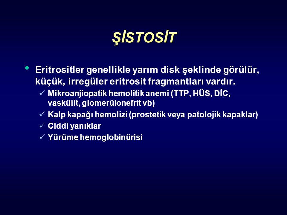 ŞİSTOSİT Eritrositler genellikle yarım disk şeklinde görülür, küçük, irregüler eritrosit fragmantları vardır. Mikroanjiopatik hemolitik anemi (TTP, HÜ
