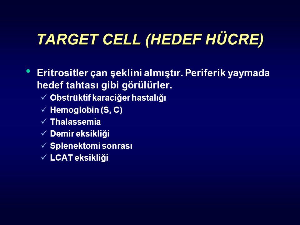 TARGET CELL (HEDEF HÜCRE) Eritrositler çan şeklini almıştır. Periferik yaymada hedef tahtası gibi görülürler. Obstrüktif karaciğer hastalığı Hemoglobi