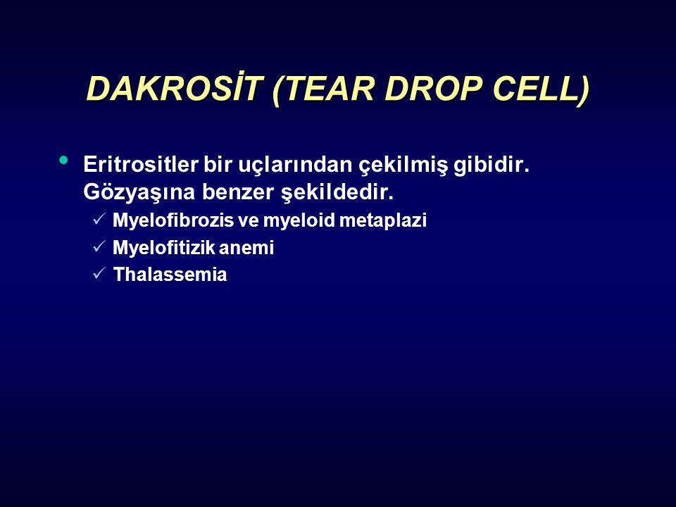 DAKROSİT (TEAR DROP CELL) Eritrositler bir uçlarından çekilmiş gibidir. Gözyaşına benzer şekildedir. Myelofibrozis ve myeloid metaplazi Myelofitizik a