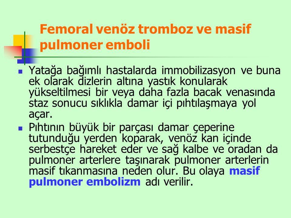 Femoral venöz tromboz ve masif pulmoner emboli Yatağa bağımlı hastalarda immobilizasyon ve buna ek olarak dizlerin altına yastık konularak yükseltilme
