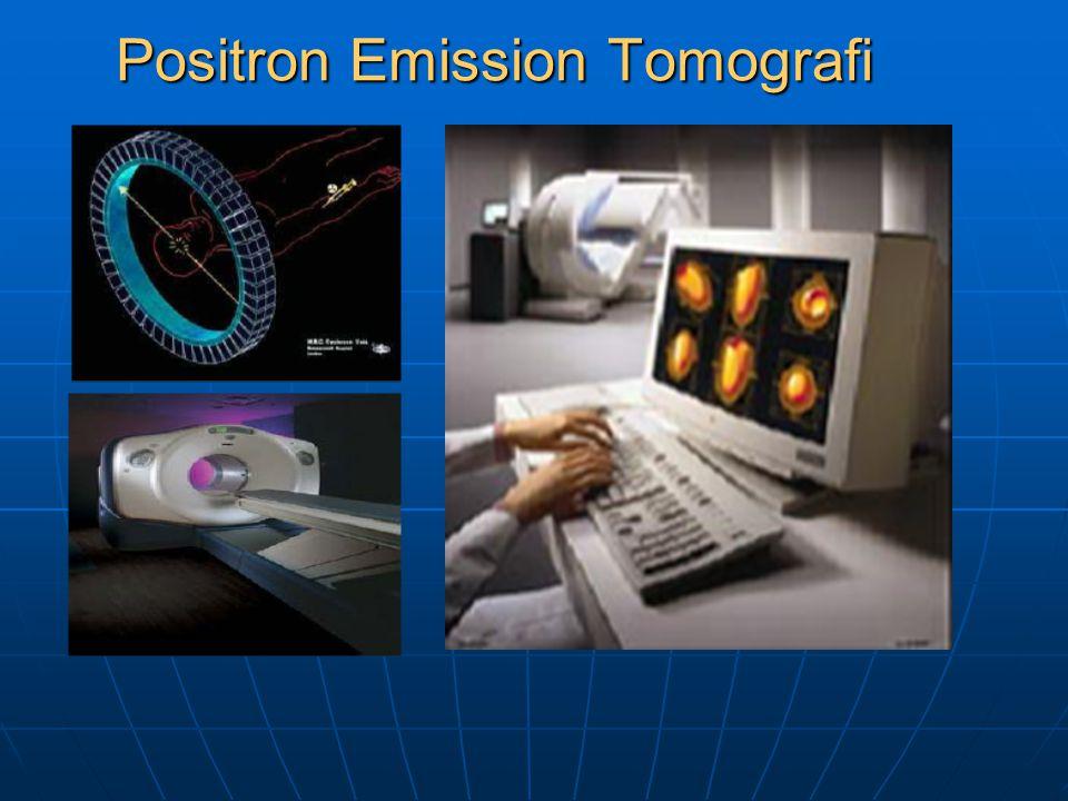 Positron Emission Tomografi
