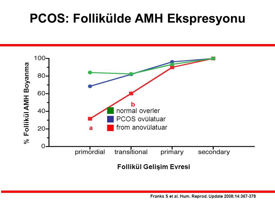 PCOS: Follikülde AMH Ekspresyonu Franks S et al. Hum. Reprod. Update 2008;14:367-378 normal overler PCOS ovülatuar from anovülatuar Follikül Gelişim E