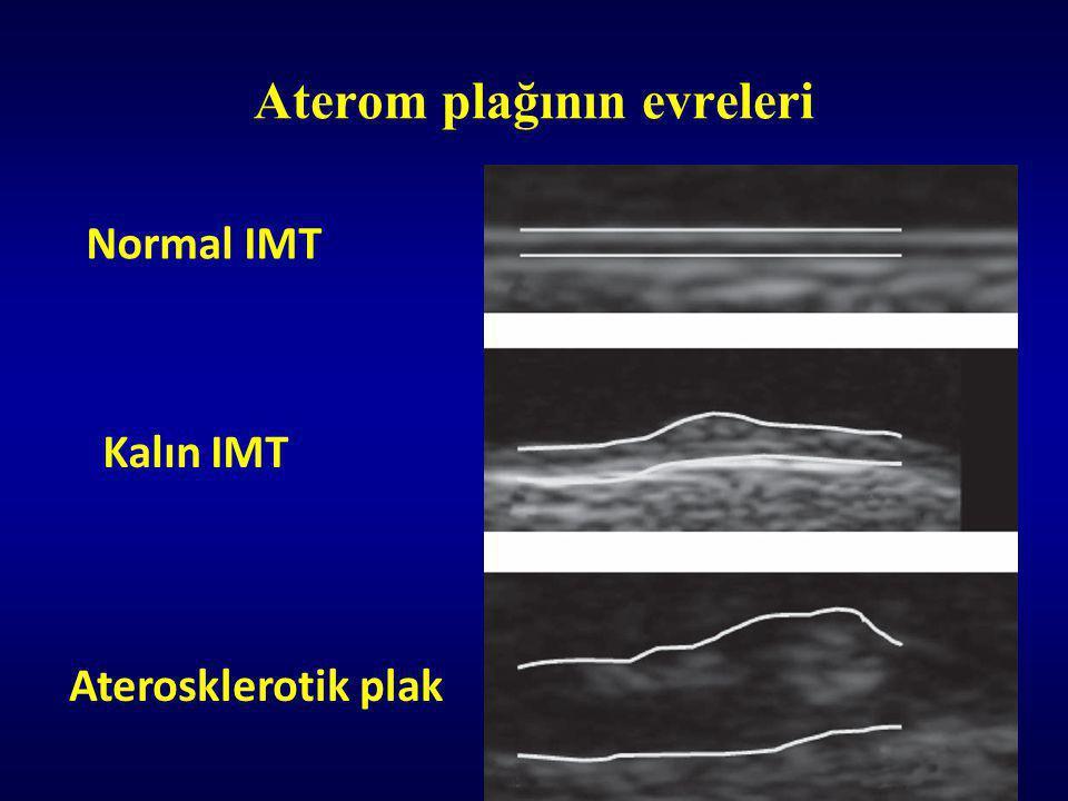 Aterom plağının evreleri Normal IMT Kalın IΜΤ Aterosklerotik plak
