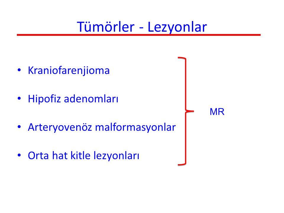 Tümörler - Lezyonlar Kraniofarenjioma Hipofiz adenomları Arteryovenöz malformasyonlar Orta hat kitle lezyonları MR