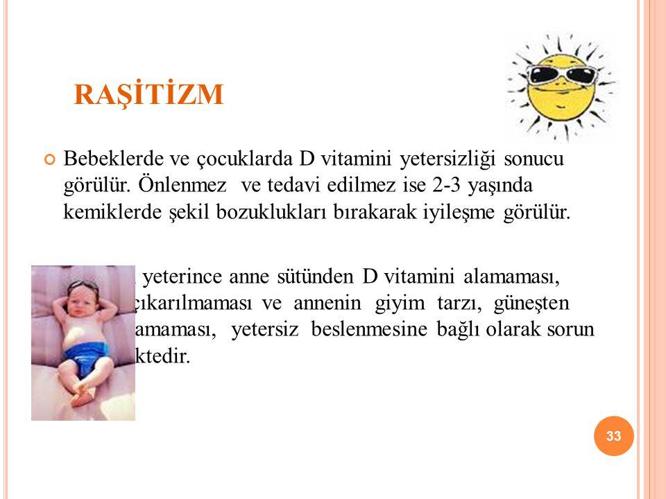 RAŞİTİZM Bebeklerde ve çocuklarda D vitamini yetersizliği sonucu görülür.