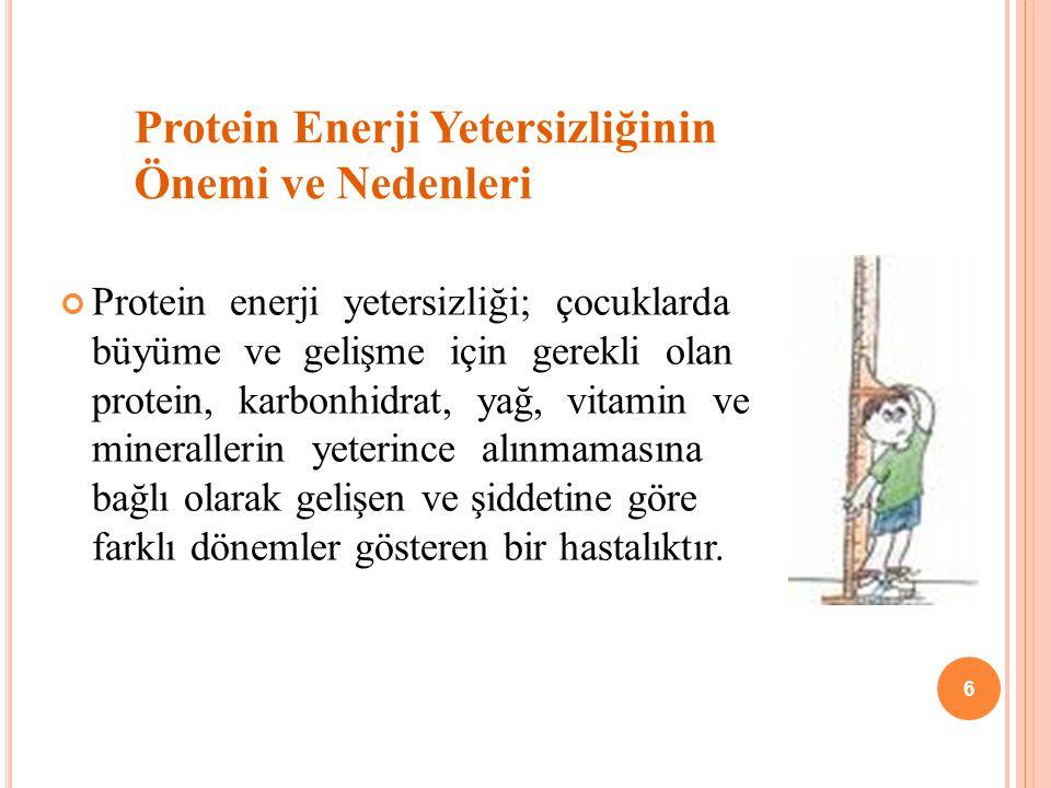 Protein Enerji Yetersizliğinin Önemi ve Nedenleri-I Çocuk ölümlerinin başlıca nedenlerinden biridir.