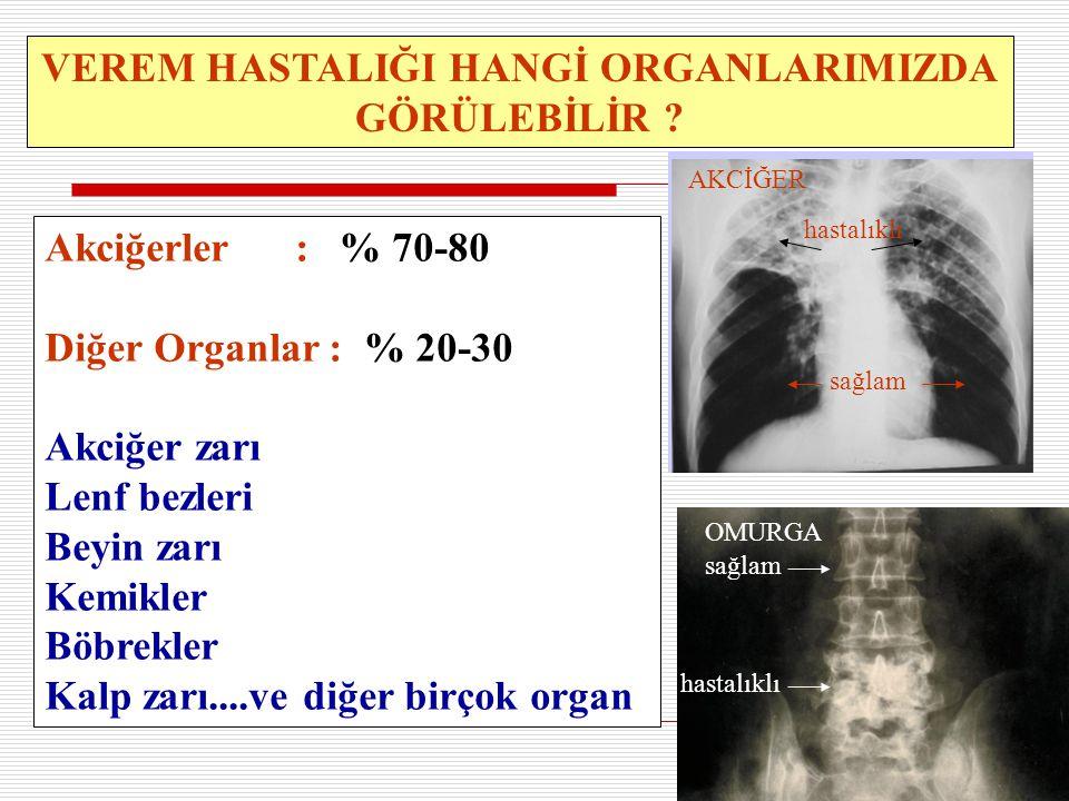 14 VEREM HASTALIĞI HANGİ ORGANLARIMIZDA GÖRÜLEBİLİR ? Akciğerler : % 70-80 Diğer Organlar : % 20-30 Akciğer zarı Lenf bezleri Beyin zarı Kemikler Böbr