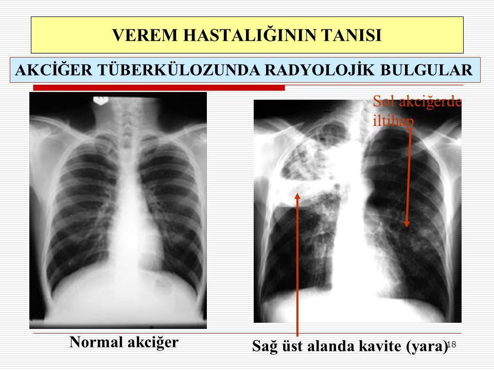 18 Sağ üst alanda kavite (yara) Sol akciğerde iltihap VEREM HASTALIĞININ TANISI Normal akciğer AKCİĞER TÜBERKÜLOZUNDA RADYOLOJİK BULGULAR