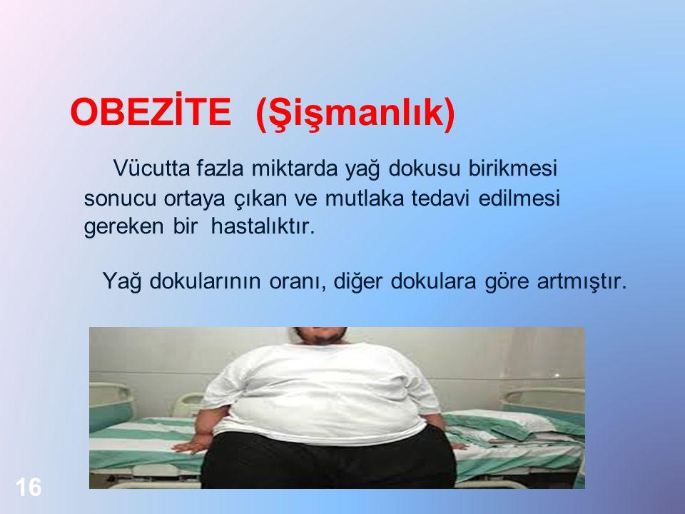 OBEZİTE (Şişmanlık) Vücutta fazla miktarda yağ dokusu birikmesi sonucu ortaya çıkan ve mutlaka tedavi edilmesi gereken bir hastalıktır. Yağ dokularını