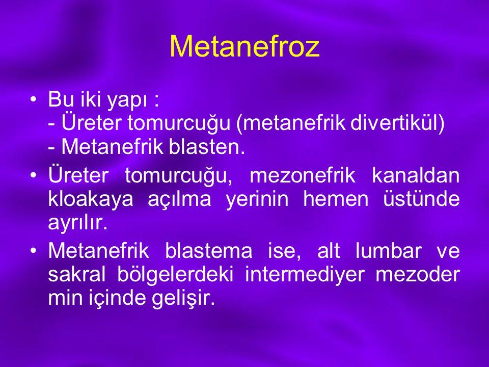 Metanefroz Bu iki yapı : - Üreter tomurcuğu (metanefrik divertikül) - Metanefrik blasten. Üreter tomurcuğu, mezonefrik kanaldan kloakaya açılma yerini