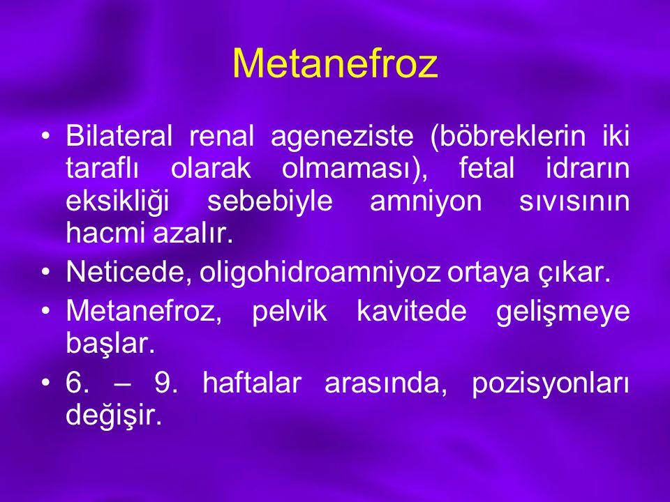 Metanefroz Bilateral renal ageneziste (böbreklerin iki taraflı olarak olmaması), fetal idrarın eksikliği sebebiyle amniyon sıvısının hacmi azalır. Net