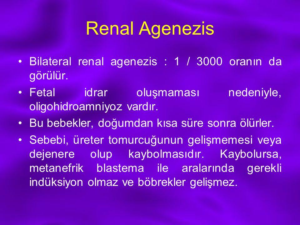 Renal Agenezis Bilateral renal agenezis : 1 / 3000 oranın da görülür. Fetal idrar oluşmaması nedeniyle, oligohidroamniyoz vardır. Bu bebekler, doğumda