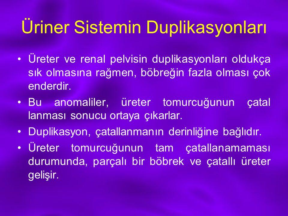 Üriner Sistemin Duplikasyonları Üreter ve renal pelvisin duplikasyonları oldukça sık olmasına rağmen, böbreğin fazla olması çok enderdir. Bu anomalile