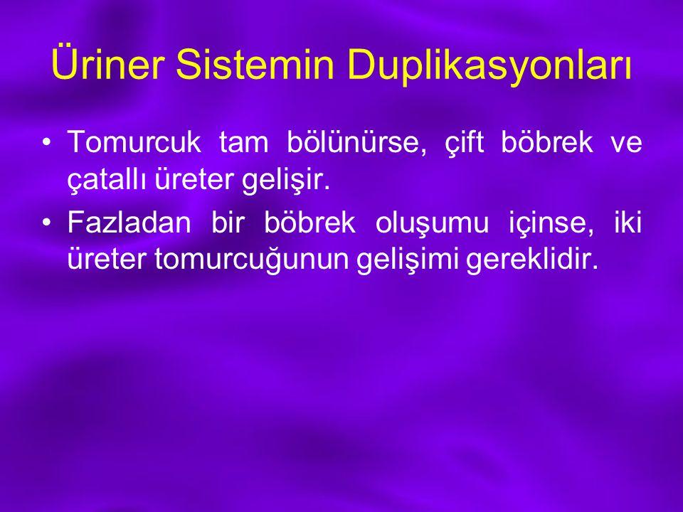 Üriner Sistemin Duplikasyonları Tomurcuk tam bölünürse, çift böbrek ve çatallı üreter gelişir. Fazladan bir böbrek oluşumu içinse, iki üreter tomurcuğ