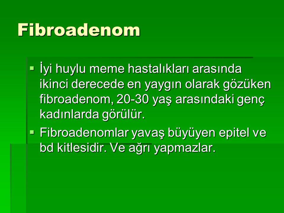 Fibroadenom  İyi huylu meme hastalıkları arasında ikinci derecede en yaygın olarak gözüken fibroadenom, 20-30 yaş arasındaki genç kadınlarda görülür.