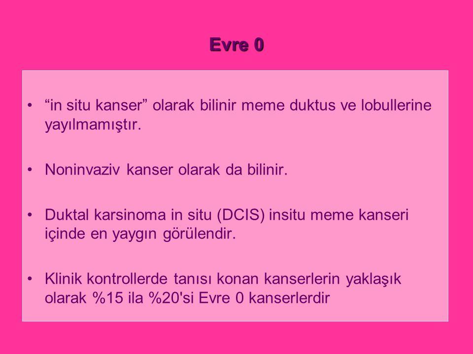 """Evre 0 """"in situ kanser"""" olarak bilinir meme duktus ve lobullerine yayılmamıştır. Noninvaziv kanser olarak da bilinir. Duktal karsinoma in situ (DCIS)"""