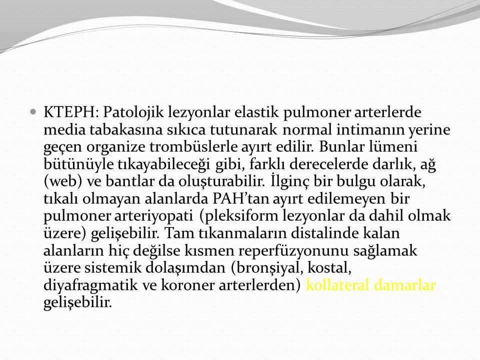 KTEPH: Patolojik lezyonlar elastik pulmoner arterlerde media tabakasına sıkıca tutunarak normal intimanın yerine geçen organize trombüslerle ayırt edi