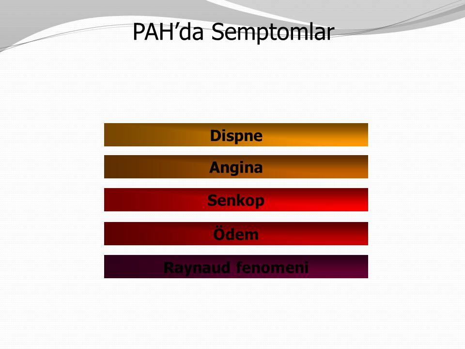 Dispne Angina Senkop Ödem Raynaud fenomeni PAH'da Semptomlar