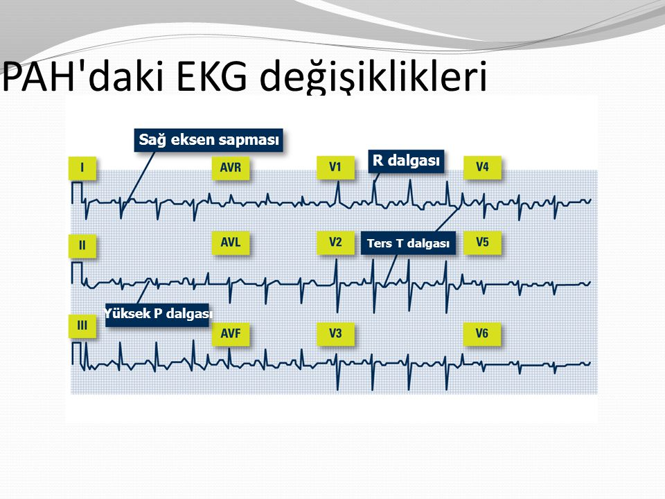 PAH'daki EKG değişiklikleri Sağ eksen sapması R dalgası Ters T dalgası Yüksek P dalgası