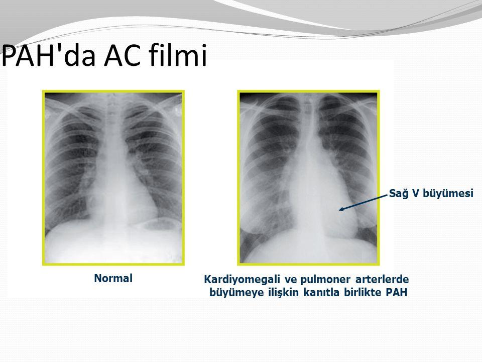 Sağ V büyümesi PAH'da AC filmi Normal Kardiyomegali ve pulmoner arterlerde büyümeye ilişkin kanıtla birlikte PAH