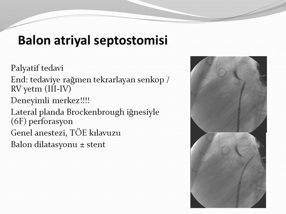 Balon atriyal septostomisi Palyatif tedavi End: tedaviye rağmen tekrarlayan senkop / RV yetm (III-IV) Deneyimli merkez!!!! Lateral planda Brockenbroug