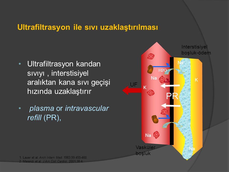Ultrafiltrasyon kandan sıvıyı, interstisiyel aralıktan kana sıvı geçişi hızında uzaklaştırır plasma or intravascular refill (PR), Ultrafiltrasyon ile sıvı uzaklaştırılması 1.