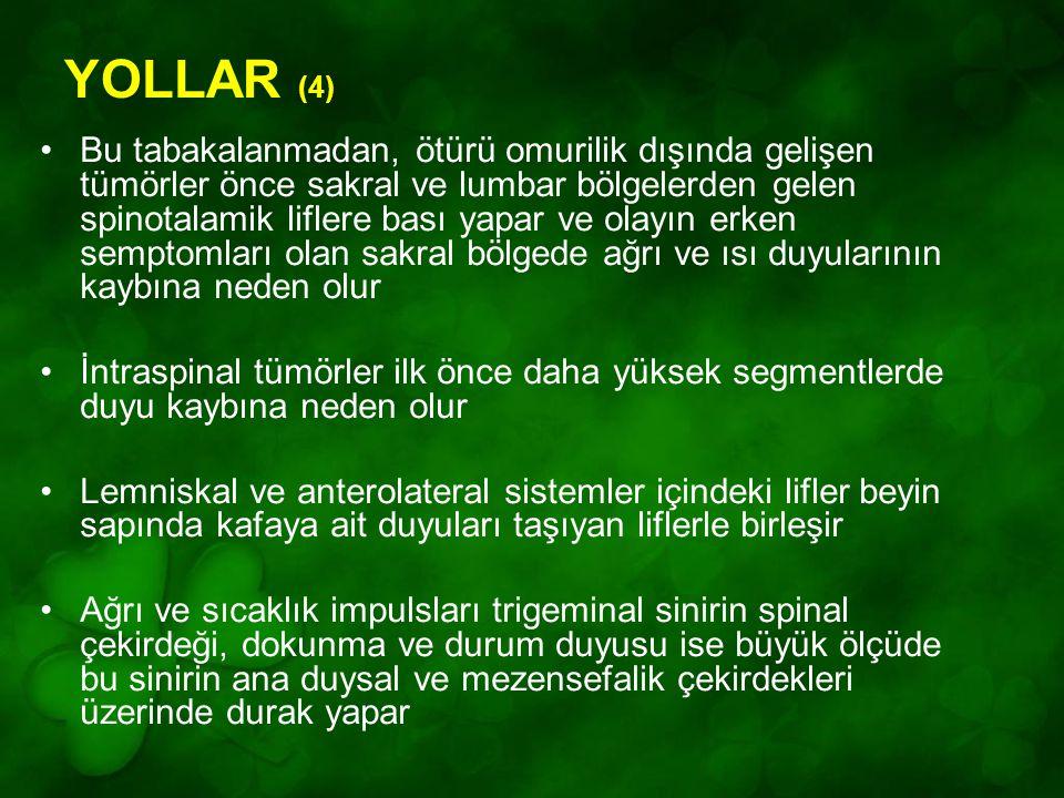 YOLLAR (4) Bu tabakalanmadan, ötürü omurilik dışında gelişen tümörler önce sakral ve lumbar bölgelerden gelen spinotalamik liflere bası yapar ve olayı