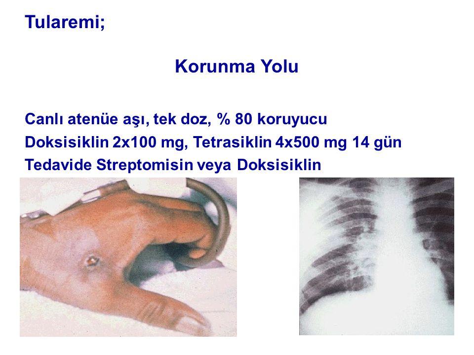 Tularemi; Korunma Yolu Canlı atenüe aşı, tek doz, % 80 koruyucu Doksisiklin 2x100 mg, Tetrasiklin 4x500 mg 14 gün Tedavide Streptomisin veya Doksisiklin