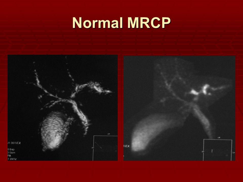 Normal MRCP