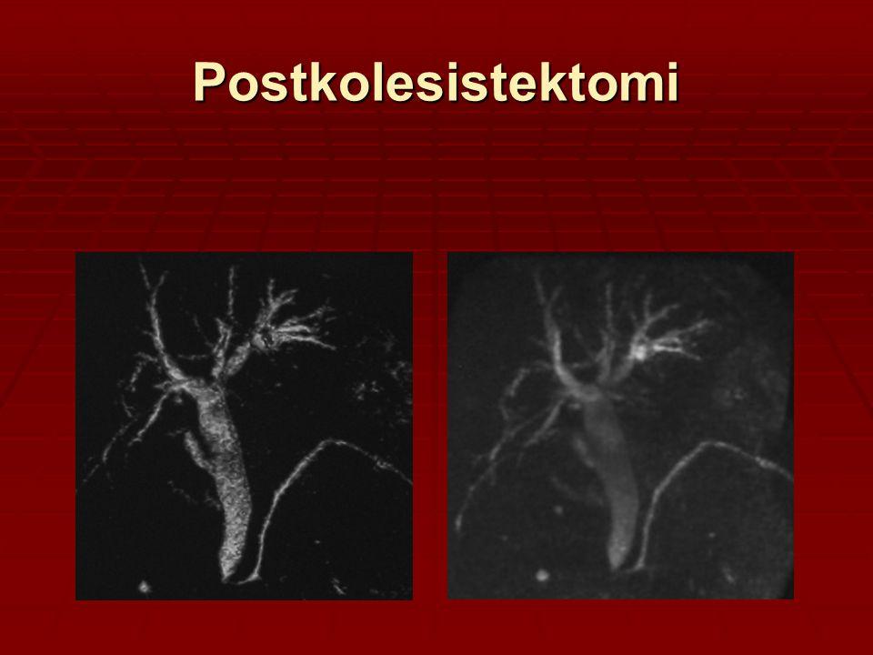 Postkolesistektomi