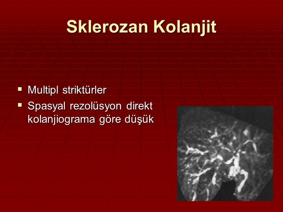 Sklerozan Kolanjit  Multipl striktürler  Spasyal rezolüsyon direkt kolanjiograma göre düşük