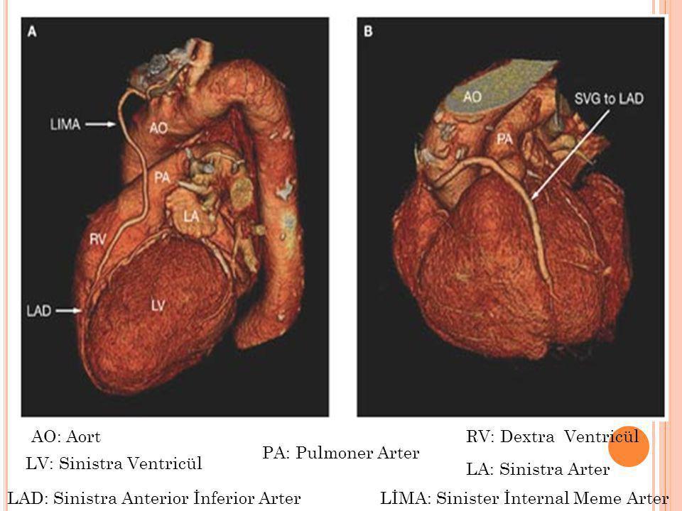 AO: Aort PA: Pulmoner Arter LA: Sinistra Arter LV: Sinistra Ventricül RV: Dextra Ventricül LAD: Sinistra Anterior İnferior ArterLİMA: Sinister İnterna