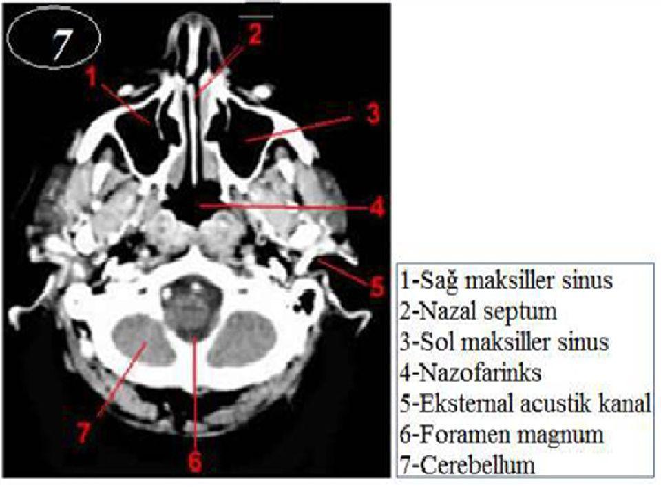 Aorta Truncus Pulmonalis Pulmonalis A.Pulmonalis Aorta V.Pulmonalis V.Cava Süperior